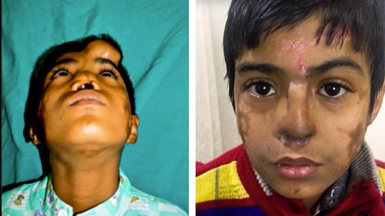 Niño sometido a una operación de reconstrucción de nariz