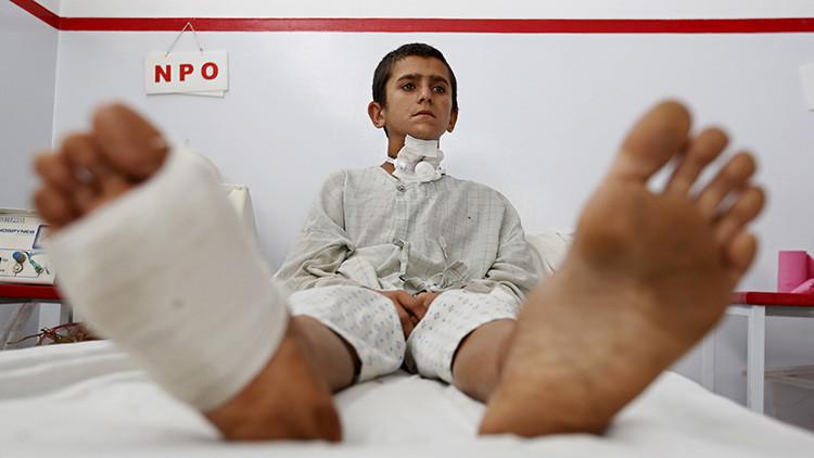 Un niño afgano herido que sobrevivió a un ataque aéreo de EE.UU. contra un hospital de Médicos Sin Fronteras (MSF) en Kunduz, recibe tratamiento en un hospital en Kabul, el 8 de octubre de 2015.