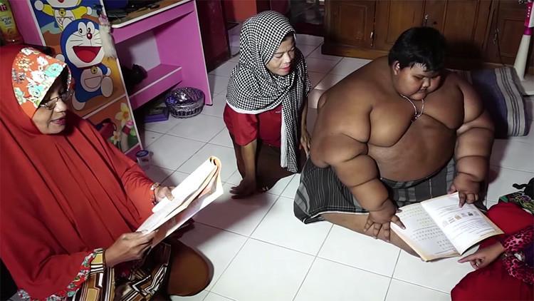 El drama del niño más obeso del mundo: 191 kilogramos con apenas 10 años