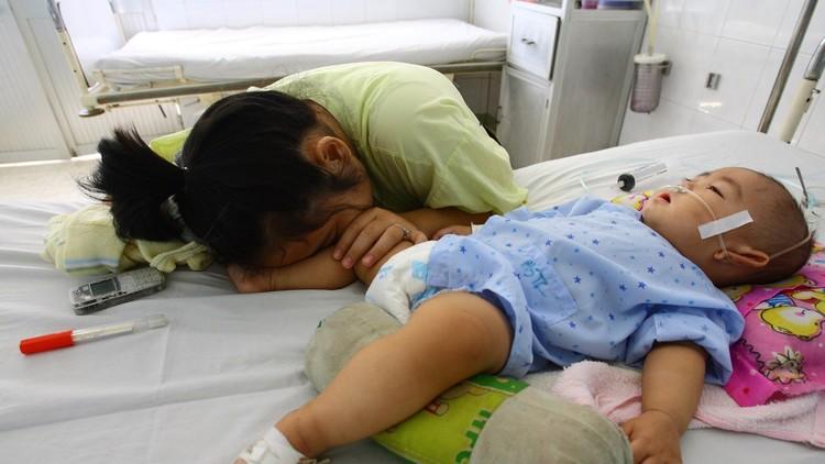 Morir durmiendo: los peligros de la 'maldición de Ondina'