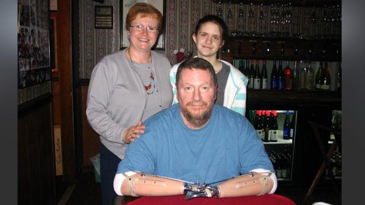 El primer estadounidense con las dos manos trasplantadas quiere deshacerse de ellas