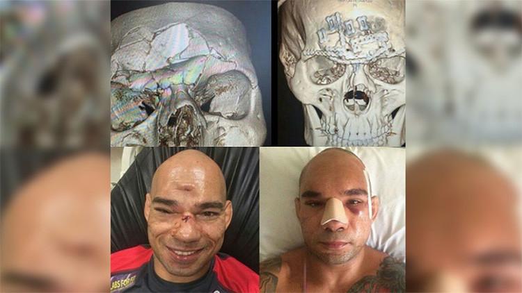 Fotos: Así quedó el 'Cyborg' brasileño después de que su rival le fracturara el cráneo
