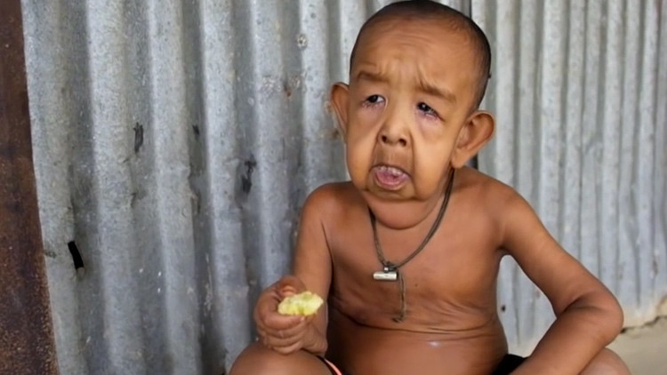 'Benjamin Button': La tragedia de un niño de 4 años que tiene aspecto de anciano