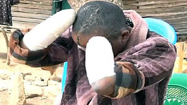 Un hombre destroza la cara de su mujer y le amputa las manos a machetazos por no tener hijos