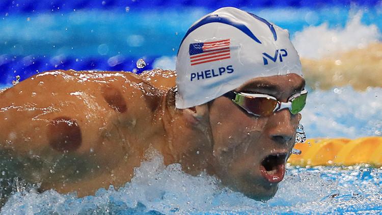 Río 2016: ¿Por qué los atletas olímpicos lucen círculos extraños?