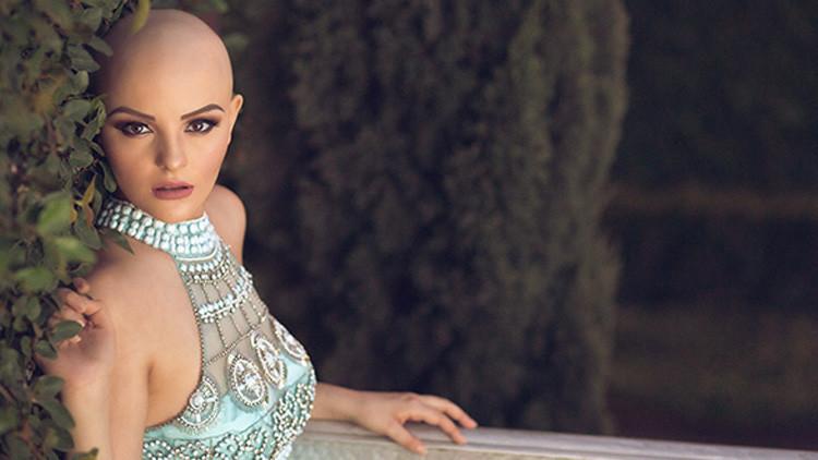 Fotos: La modelo mexicana que convirtió su lucha contra el cáncer en una fuente de inspiración
