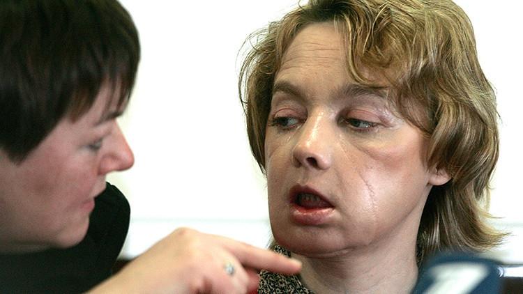 Fallece en Francia la primera persona que fue sometida a un trasplante de cara en el mundo