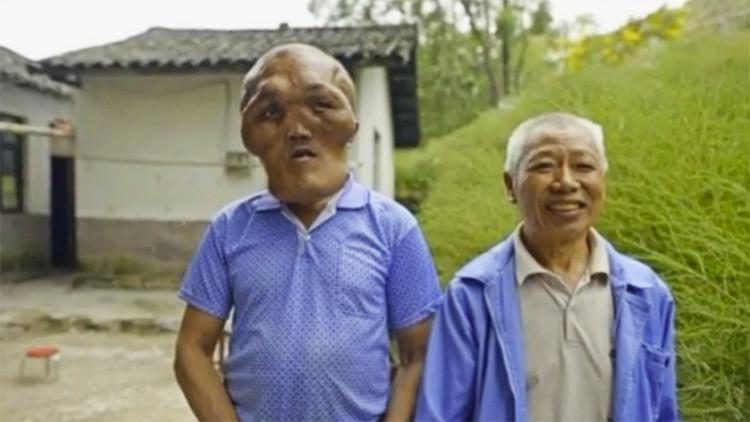 'Cabeza de alienígena': Una extraña enfermedad deforma el rostro de un hombre en China