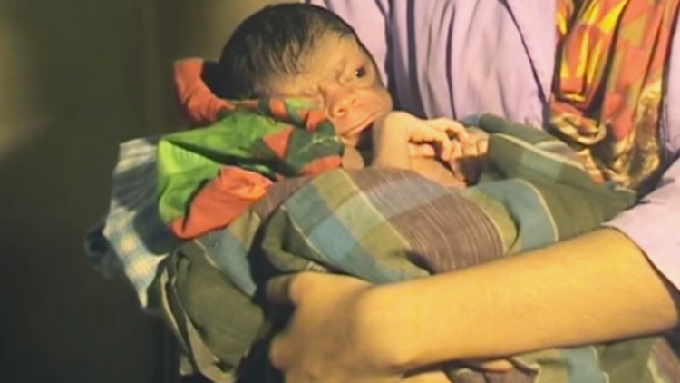 ADVERTENCIA, VIDEO FUERTE: Nace un bebé con el rostro de un anciano