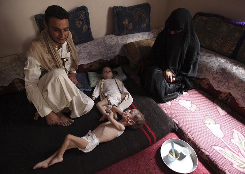 Una familia con sus hijos, uno de ellos con desnutrición severa, en su casa, en Sanaa