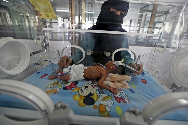 Una doctora atiende a un bebé recién nacido en la unidad de cuidados intensivos de un hospital de Sanaa