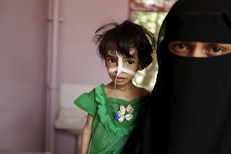 Una niña con problemas de nutrición acompañada por su madre en un hospital de Sanaa