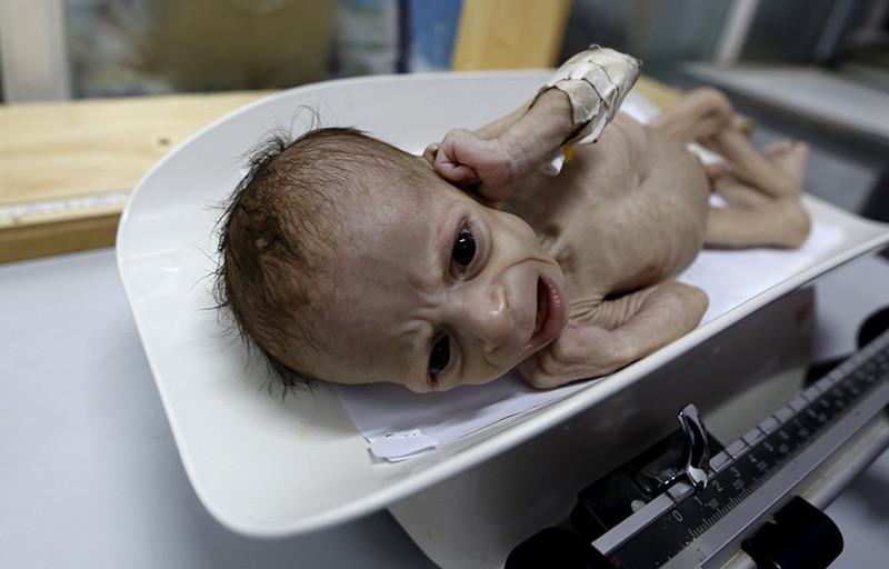 Un bebé de seis meses llora mientras los médicos lo están pesando en una unidad de cuidados intensivos especial para casos de desnutrición infantil, en Sanaa