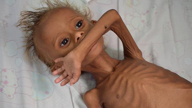 Un niño con desnutrición severa ingresado en el hospital de Houdieda
