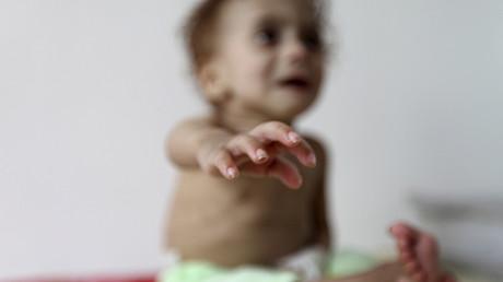 Un niño con desnutrición severa llorando en la casa familiar, en Sanaa