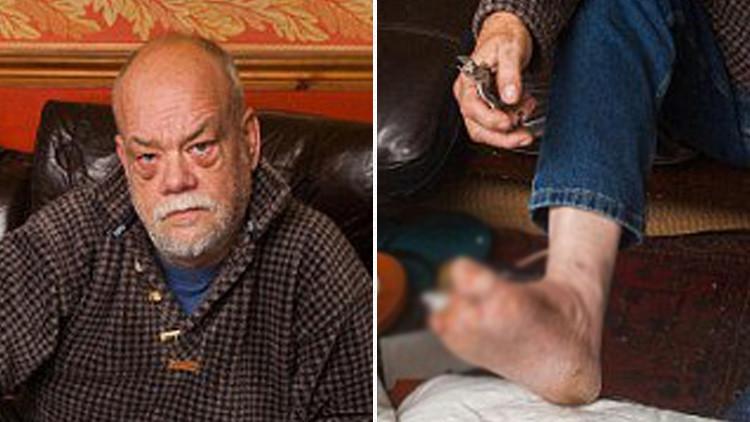 La increíble razón por la que un exsoldado se amputó dos dedos con unos alicates y sin anestesia