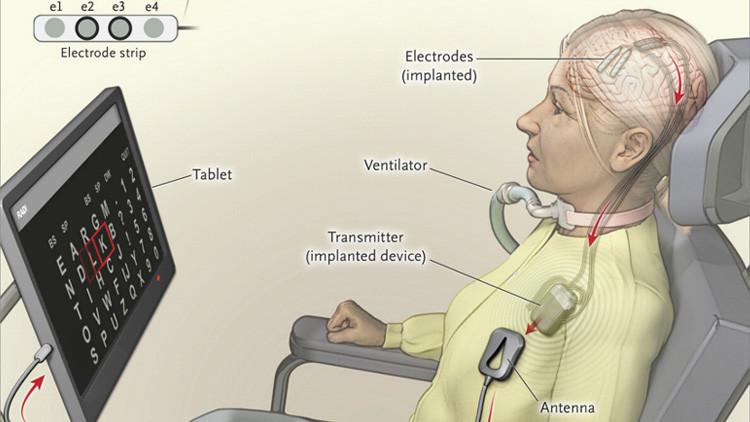 Hablando con la mente: Un implante en el cerebro permite comunicarse a una mujer con parálisis