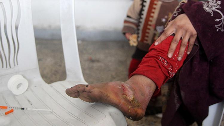 La 'enfermedad zombi' que azota Oriente Próximo cruza el Atlántico