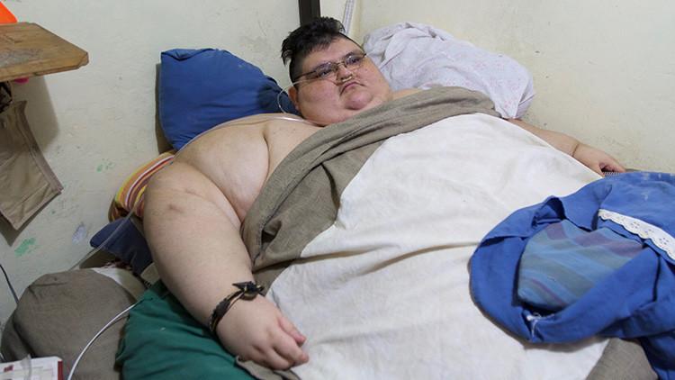 """""""Mi cuerpo es una prisión"""": El hombre más obeso del mundo comienza una nueva vida en México (fotos)"""