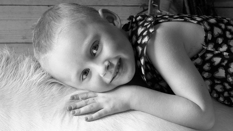 "Fallece Jessica Whelan, la niña que mostró ""la verdadera cara del cáncer"""