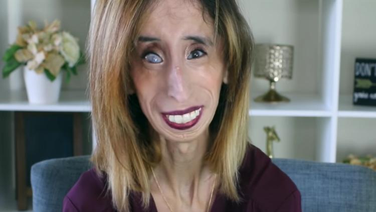 'La mujer más fea del mundo' responde tras ver su foto en memes