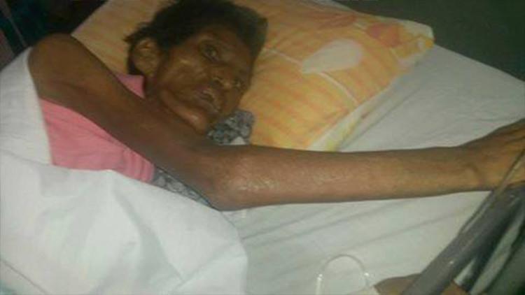 Muere la mujer que fue cruelmente maltratada por sus propios hijos en Bolivia