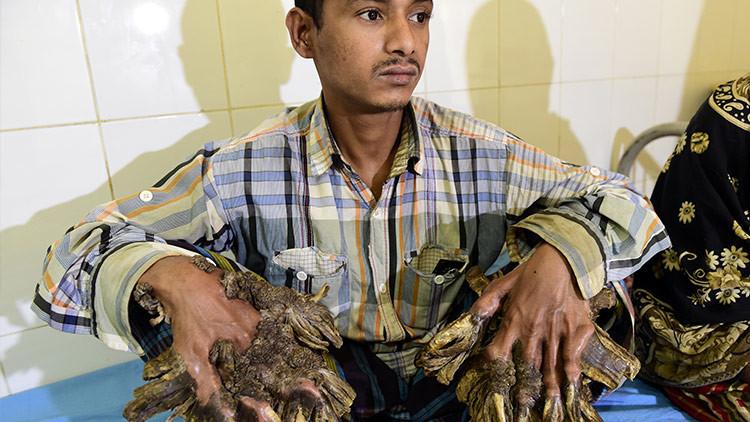 """El """"hombre árbol"""" de Bangladés por fin puede abrazar a su hija (FOTOS)"""