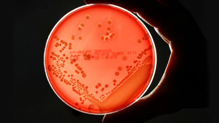 Se registra en Estados Unidos la primera muerte por una 'superbacteria' resistente a 26 antibióticos