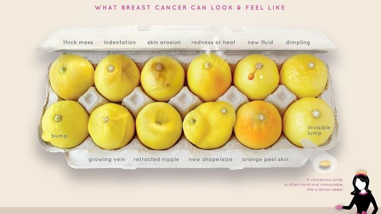 Cómo una docena de limones ayudó a una mujer a saber que tenía cáncer de mama