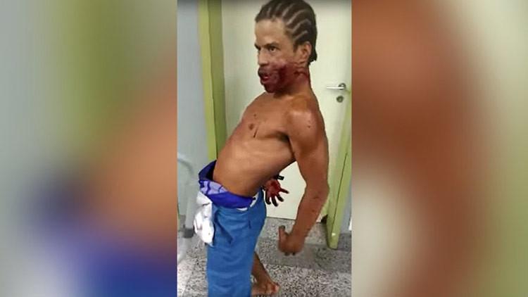 ¿Posesión en el hospital? Un hombre con un disparo en la cara aterroriza Brasil (FUERTES IMÁGENES)