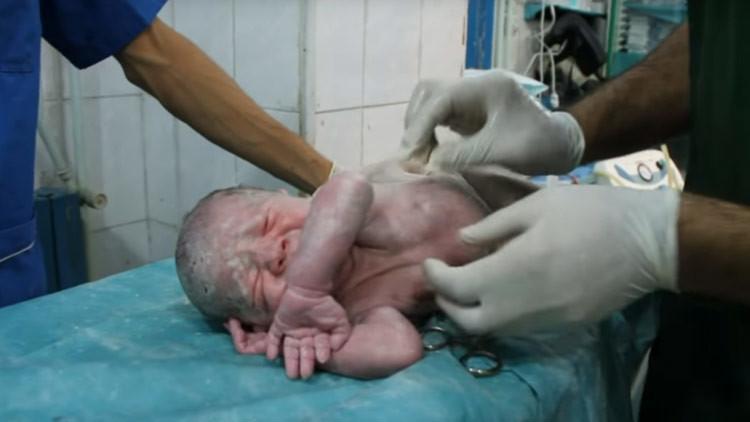 Impactante resucitación de un bebé en un hospital de Alepo (VIDEO CONMOVEDOR)