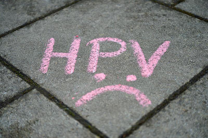 El VPH puede causar dolor en la ingle