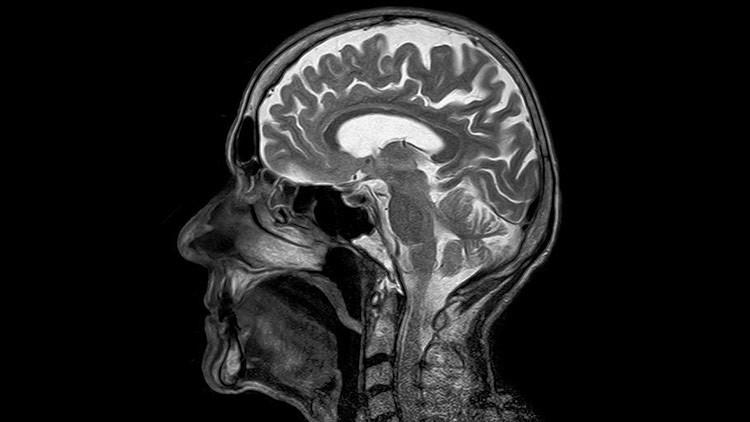 Descubren 13 errores genéticos que aumentan el riesgo de cáncer cerebral