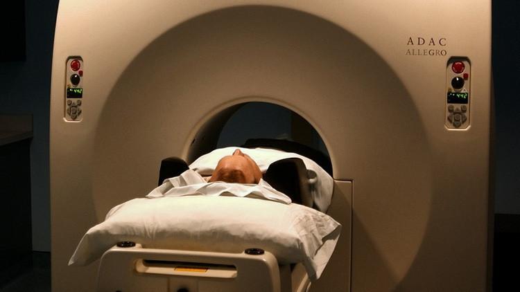 Científicos descubren el supuesto origen del alzhéimer