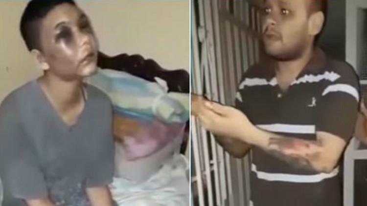 Mordida y apuñalada: El fin del atroz cautiverio de una colombiana torturada por su pareja (VIDEO)