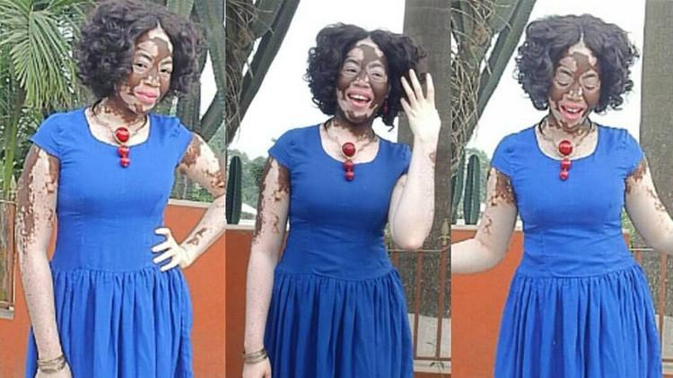 Cómo esta enfermera con vitíligo superó el 'bullying' y se convirtió en modelo