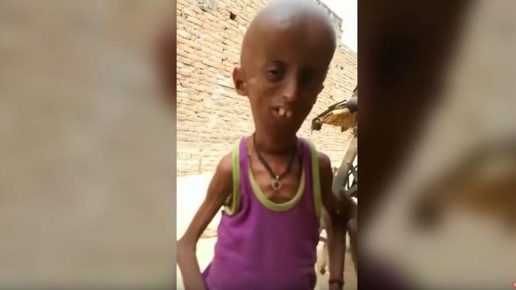 Este indio de 21 años vive atrapado en el cuerpo de un anciano (VIDEO, FOTOS)