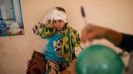 Dua Nawaf, de 8 años, en un hospital en las afueras de Mosul