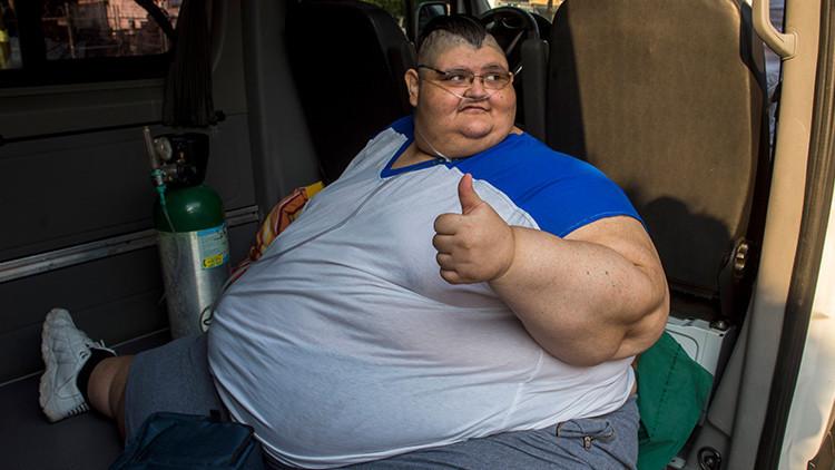 El hombre más obeso del mundo fue intervenido con éxito en México