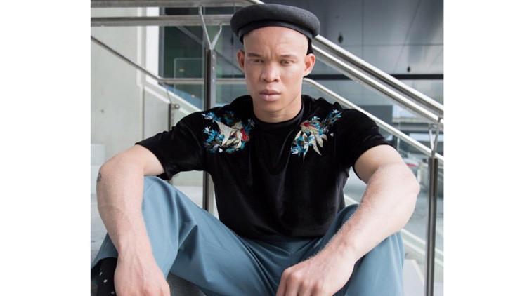 Un albino africano que escapó de los brujos de su país encuentra trabajo como modelo en Australia