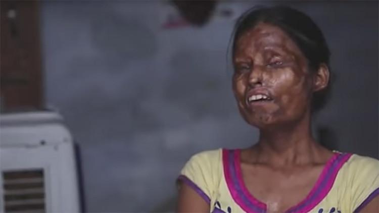 """""""Amenaza con matarnos"""": por qué una madre y una hija desfiguradas con ácido viven con su atacante"""