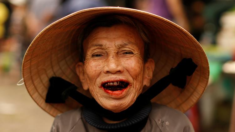 Una mujer china se somete a una cirugía plástica para no pagar una deuda millonaria