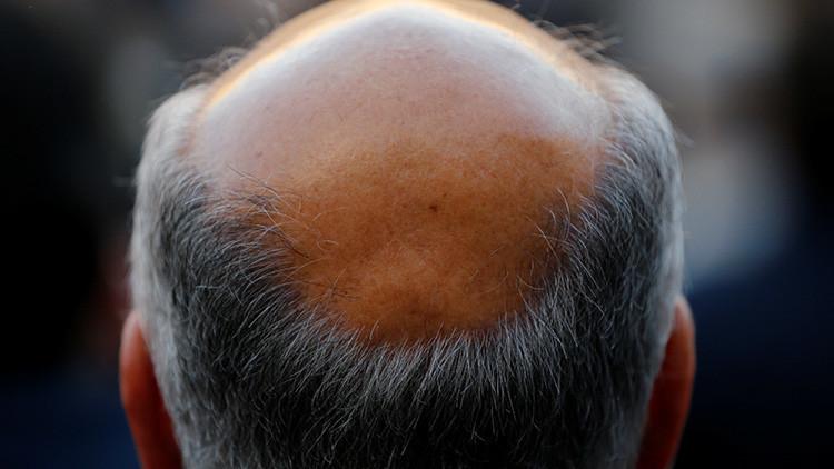 """""""Prometedor"""": Científicos descubren un revolucionario método contra la calvicie"""