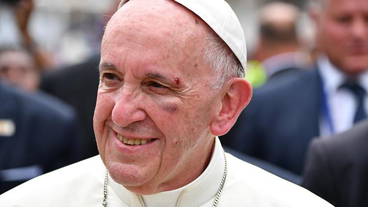 VIDEO, FOTOS: El papa Francisco se golpea el rostro en el papamóvil