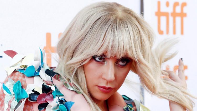 Esta es la enfermedad crónica que padece Lady Gaga