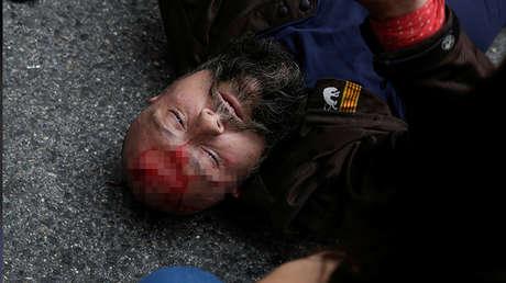 Un hombre herido durante la represión policial del domingo yace fuera de un colegio electoral en Tarragona.