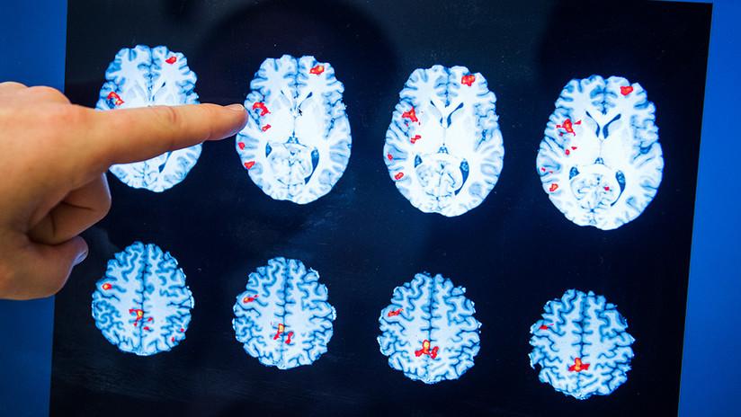 El cerebro femenino funciona mejor que el masculino durante la excitación sexual