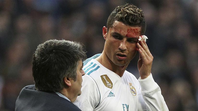 МЕМЕS: Cristiano Ronaldo se mira en un teléfono un corte en el rostro y la Red le ataca sin piedad