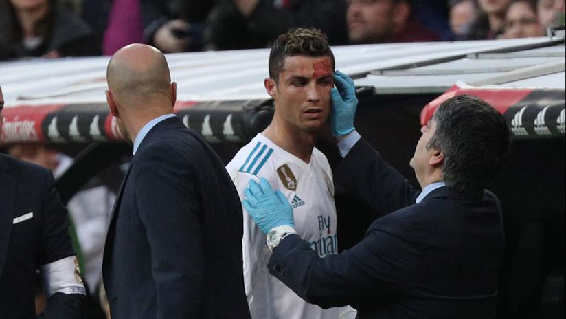 FOTO: Así le quedó la cara a Ronaldo tras el golpe que recibió en el último encuentro