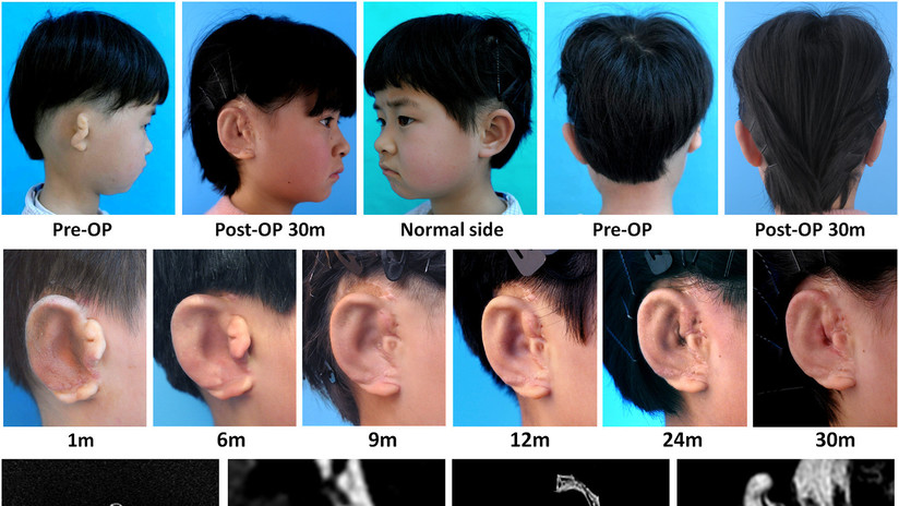 Científicos logran hacer crecer orejas en cinco niños a partir de sus propias células (FOTOS)